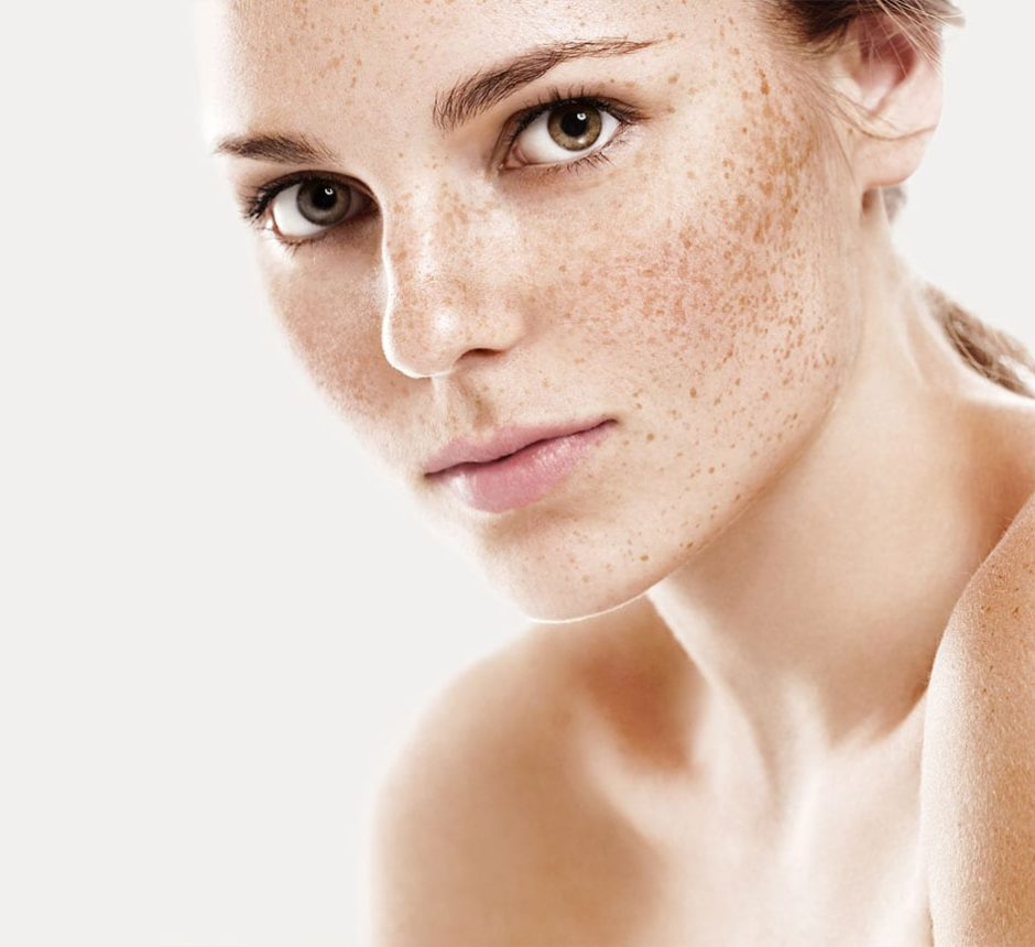 Age Spots and Pigmentation