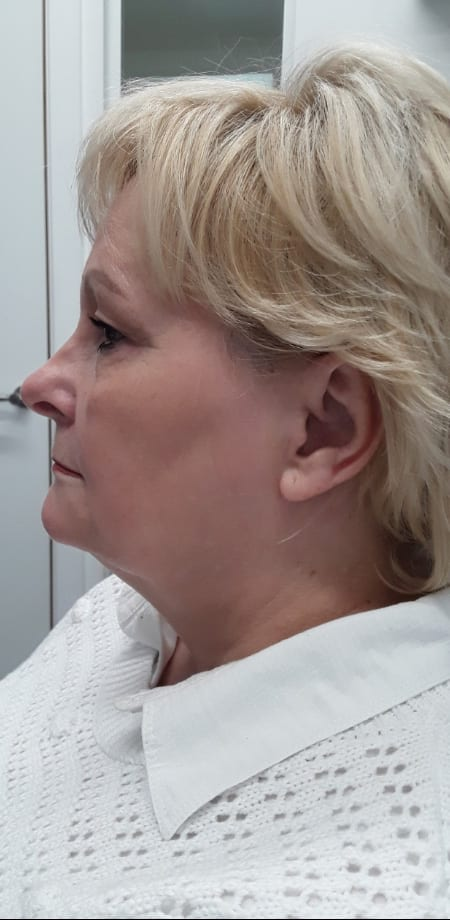 Double Chin Treatment Ascot