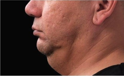 Double Chin Treatment Before
