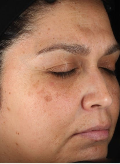 Obagi Nu-Derm® Before